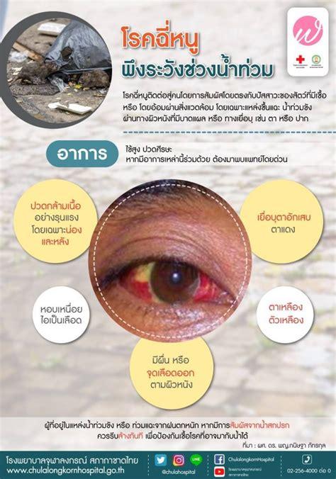 ThaiHotPro.com , ติดจอ ฬ จุฬา : โรคฉี่หนู พึงระวังช่วงน้ำ ...