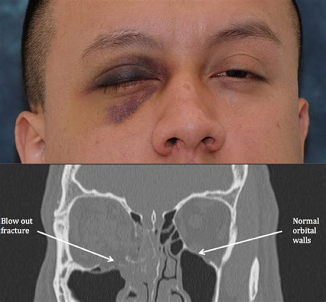 orbital blowout facial trauma