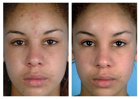 renova laser hair removal medspa houston tx