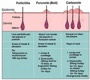 Folliculitis Causes  Pictures And Treatment