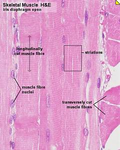 Pathology Outlines - Skeletal muscle - normal