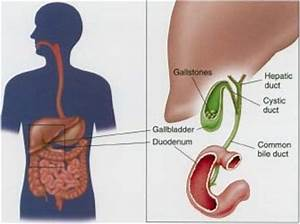 Pancreas Pain Location In Body   Get Free Image About ...