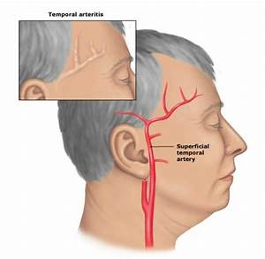 Cranial Arteritis, Temporal Arteritis, Giant Cell Arteritis