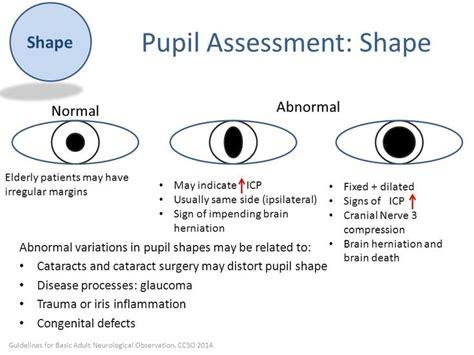 Image Result For Pupil Assessment Cranial Nerve 3