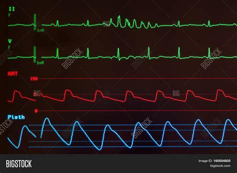Close Medical Monitor Green Image & Photo   Bigstock