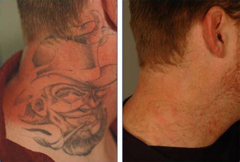 laser tattoo removal  vascular regions tattoo removal