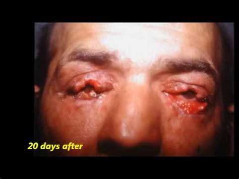 Eye lid reconstruction after burn- Tagliacozzi pedicle ...