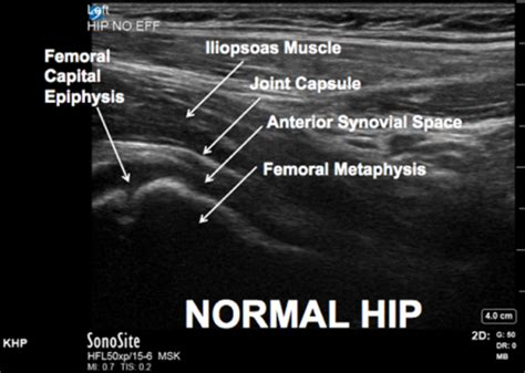 ACEP // Tips & Tricks: Ultrasound in the Diagnosis of a ...