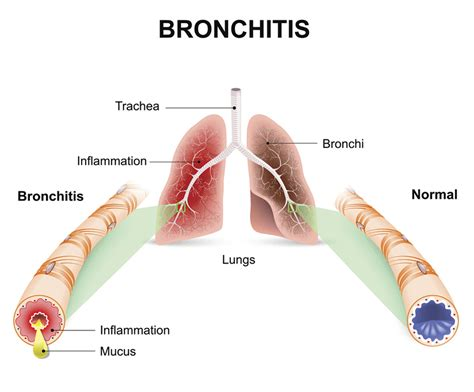 Bronchitis  Community  Antibiotic Use  Cdc. Counter Signs. Present Signs. Biochemical Signs Of Stroke. Kitchen Wall Signs Of Stroke. Guide Signs. Flower Power Signs Of Stroke. Emoticon Signs Of Stroke. Happy Hour Signs