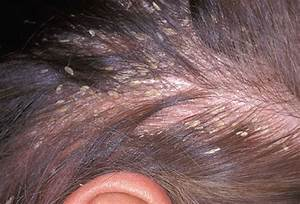 Pictures Of What Your Hair And Scalp Say About Your Health
