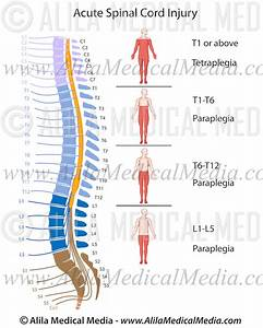 Spinal Cord Injury Levels V2