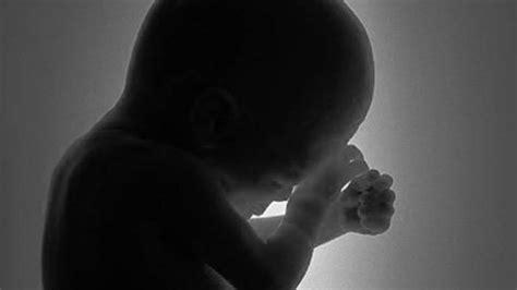 Aborsi Kandungan Riau Hamil Dua Bulan Gadis Bawah Umur Lakukan Aborsi Diduga
