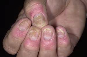 Guttate psoriasis stages