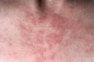 Pimple Rash On Neck