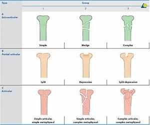 Distal femur - AO Surgery Reference