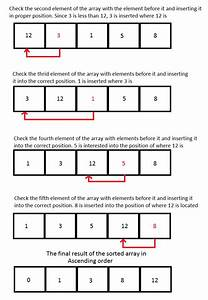 Mirena Insertion Diagram