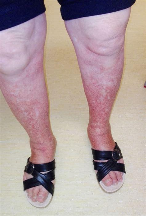 purpura    caused   anticoagulant faria