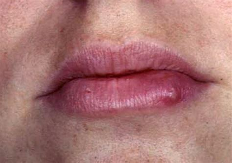 Oral Herpes Simplex Virus Infection Images