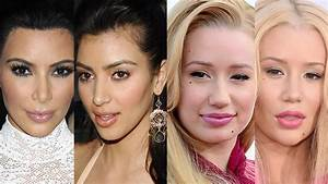 6 Celebs Who39ve Admitted to Plastic Surgery  YouTube