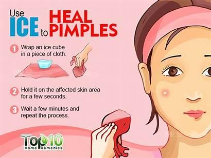 Acne Pimples Rid Fast Pimple Remove Overnight