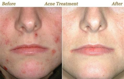 How Much Face Laser Treatment Of Scars Cost In India?  Quora. Progressive Find An Agent Cold Calling Leads. Free Web Based Inventory Management. Heavy Hauling Trucking Companies. Phone Company Los Angeles Branch Garage Door. Offshore Software Development Center. Consolidated Credit Loans Up To Date Calendar. Invoice Software Online Insurance Credit Corp. Goldfarb School Of Nursing Movers Jupiter Fl