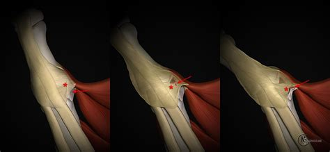 ulnar collateral ligament tears   thumb radsource