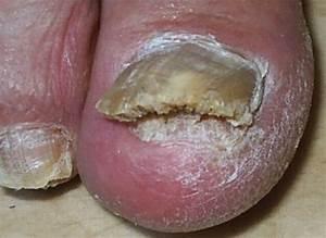 Банеоцин грибок ногтя