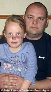 5-year-old Abbie Varrow's reaction after seeing face first ...