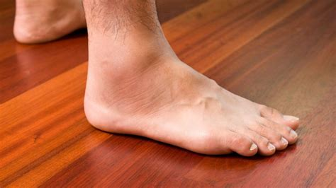 homemade natural treatment   swollen ankle