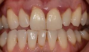 Treatment of Advanced Periodontal (Gum) Disease with Non ...