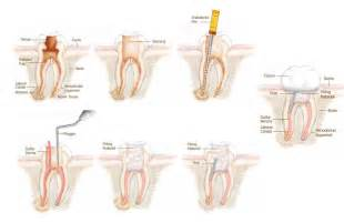 Tooth Root Canal Procedure