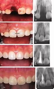 Replantation Of An Avulsed Mature Tooth Under Ideal