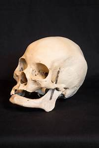 Pathological Human Skulls For Sale