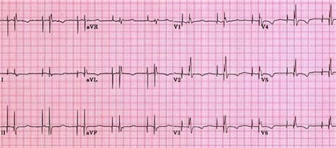 dual chamber pacemaker