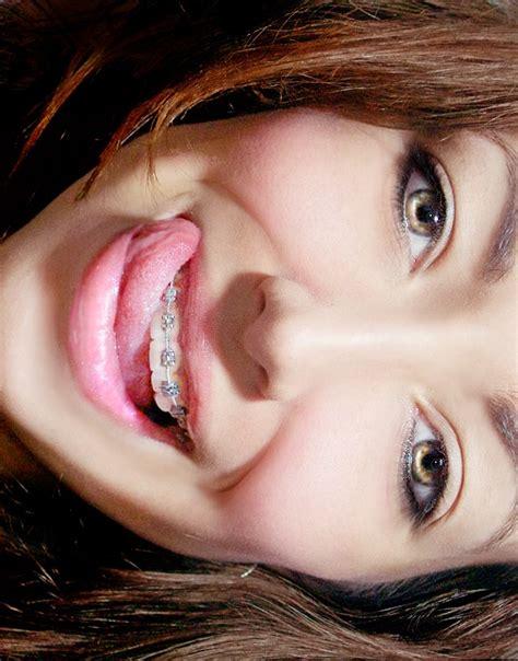 braces teeth face girl smile fav images amazing
