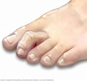 Hammertoe and mallet toe - Symptoms and causes - Mayo Clinic