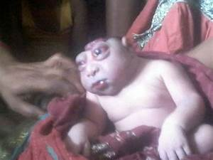 Indian boy born with rare birth defect is thought to be a god