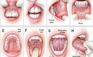 KNOW YOUR MOUTH: ORAL CANCER SIGNS, SYMPTOMS, AND ...