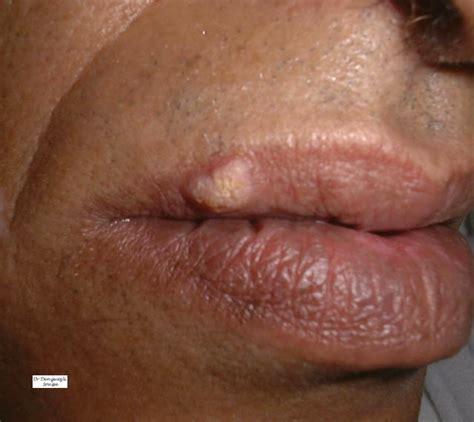 interieur de la bouche blanche k 233 ratoses pr 233 epith 233 liomateuses et leucoplasie