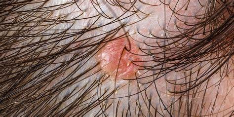 portland dermatofibroma removal norris dermatology laser
