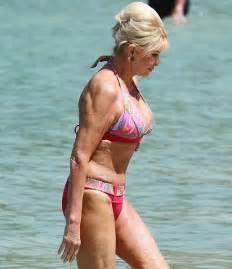 Ivana Trump Plastic Surgery Before After