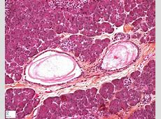 pancreas Humpathcom Human pathology