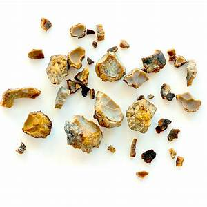 Kidney Stones: Symptoms, Causes, and Treatment