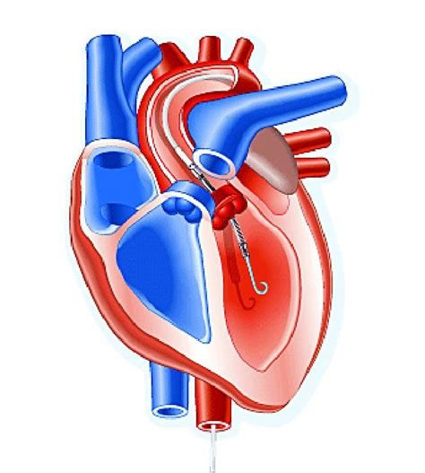 Impella heart pump may enable 30-minute reperfusion delay ...