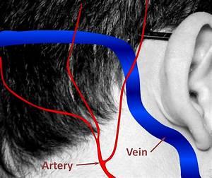 Brain Dural Fistula
