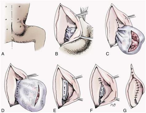 inguinal hernia dog goldenacresdogscom