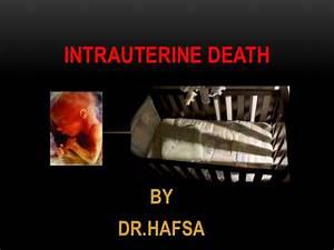 Death By Powerpoint Intrauterine Death
