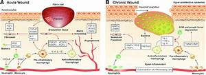 Overview Of The Immune Mechanisms In Acute And Chronic