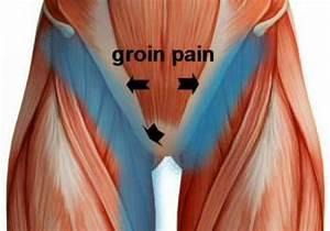 Groin Pain  Groin Strain