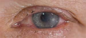 Contact Lens Wearer U0026 39 S Guide To A Bacterial Corneal Ulcer